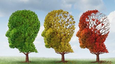 بیماری آلزایمر (دکتر محمدرضا فرازپی - قلب و عروق)