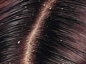 شوره سر (دکتر تورج مکرمی - پوست)