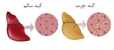 کبد چرب - دکتر ذوالبخشترکستانی هومیوپات