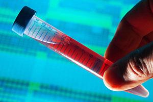 آزمایش: PTT  (فرهاد یوسفی کارشناس آزمایشگاه - شریعه رئوفی کاردان آزمایشگاه)