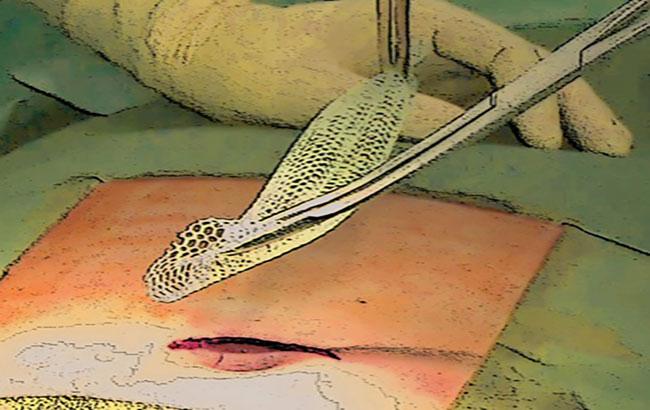 روش جدید جراحی فتق شکافی با حداقل آسیب
