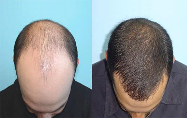 چند نکته کاربردى در کاشت مو طبیعى