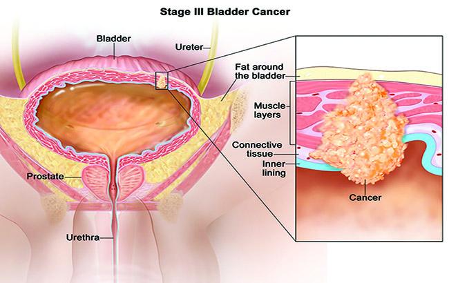 تستی جدید و غیرتهاجمی برای سرطان مثانه