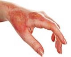 درمان سوختگی با گلبولهای سفید