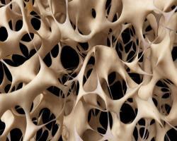 خبر خوب برای افراد مبتلا به پوکی استخوان