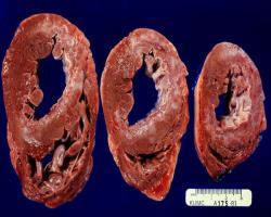 درمان جدید فیبروز