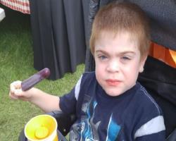 درمان بیماری کشنده دوران کودکی