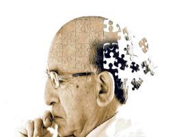 مردان ناقل ژن آلزایمر و خطر خونروی مغزی