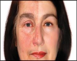 جوانسازی پوست بدون جراحی و لیزر