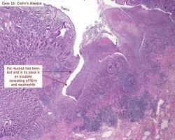 پیشگیریاز فیبروز در کرون