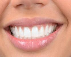 ارتباط چینش دندانها با تعادل