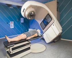 افزایش بقا در بیماران مزوتلیوما
