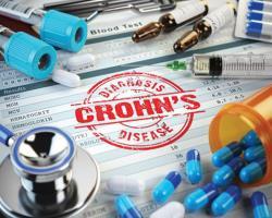 درمان بهترکرون با کشف ۲زیرگروه جدید