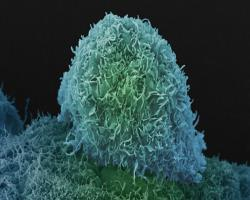گردش سلولهای سرطانی در خون و گسترش سرطانپروستات
