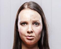 تأثیر سیگار روی زیبایی پوست