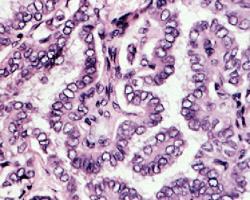 شناسایی نشانگر برای موارد مهاجم سرطان پاپیلاریتیروئید