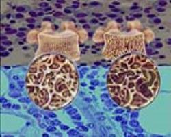 درمان سهگانه میلوممولتیپل