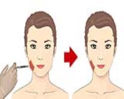 زنانهکردن صورت