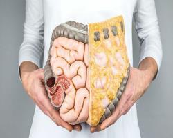 روند روبه افزایش سرطان کولورکتال در جوانان