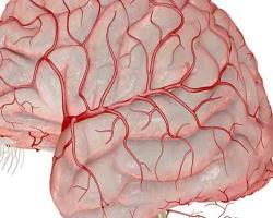 در سکته مغزی، سلولهای مغزی تخلیههای الکتریکی مخرّب را تشدید میکنند