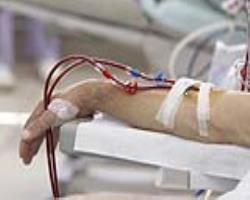 مرگ زودرس ناشیاز لختهشدن خون در بیماران کلیوی