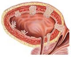 هدف آنزیمی برای کاهش سرعت پیشروندگی سرطان مثانه