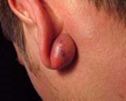 پیرسینگ، عوارض و درمان آن