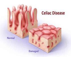عاملی غیرمنتظره در پسزمینه بیماری سلیاک