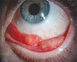 گرانولومای ملتحمه چشم