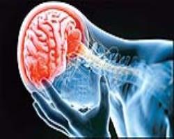 پیشگیری از سکتهمغزی، راهی برای کاهشخطر زوال عقل