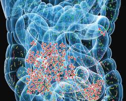 تشخیص کبد چرب و فیبروز با آزمایش مدفوع