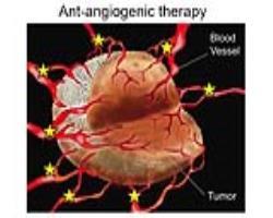 واکنش تومور به درمان ضد رگسازی (آنتیآنژیوژنیک)