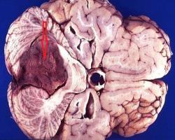 روش نوین درمان هدفمند سرطانمغـزی در کودکان