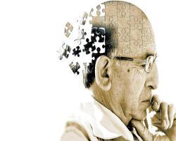 دارو درمانی آلزایـمر