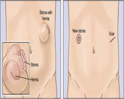 امکان درمان فتق پارا استومی بدوننیاز به عملجراحی