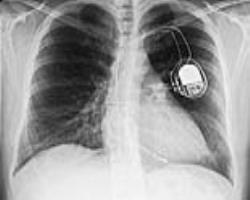 MRI مناسب دستگاههای قلبی