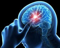 خطر مرگومیر غیرطبیعی در افراد مبتلا به بیماری صرع