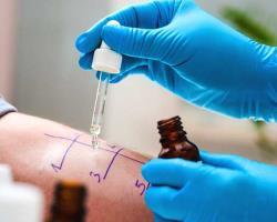 کدامیک برای تشخیص آلرژی بهتراست، تستRAST یا تستپوستی؟