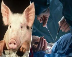 استفادهاز قرنیه خوک برای پیوند قرنیه در انسان