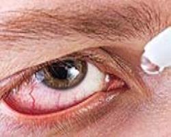 چشمخشک، نشاندهنده سندرمشوگرن