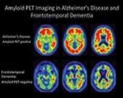 سطوح بالای آلومینیوم در بافت مغزی آلزایمرخانوادگی
