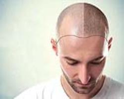 فولیکول مو و پیچیدگیهای بیولوژیک آن