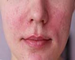 نقش بوتاکس در درمان بیماری روزاسه