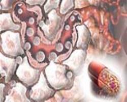 روش نوین تحویل دارو به سلولهای سرطانـی
